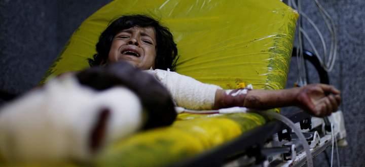 Ein 12-jähriger Bub überlebt einen Luftangriff nördlich von Sanaa. Der Bürgerkrieg im Jemen mit schätzungsweise 100.000 Opfern dauert bereits fünf Jahre.