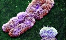 Wie viele Chromosomen sieht es X-förmig aus: das X-Chromosom des Menschen unter dem Elektronenmikroskop. Daneben liegt das deutlich kleinere Y-Chromosom, das Männer anstelle eines zweiten X-Chromosoms in ihrem Genom haben – also in allen ihren Zellkernen.