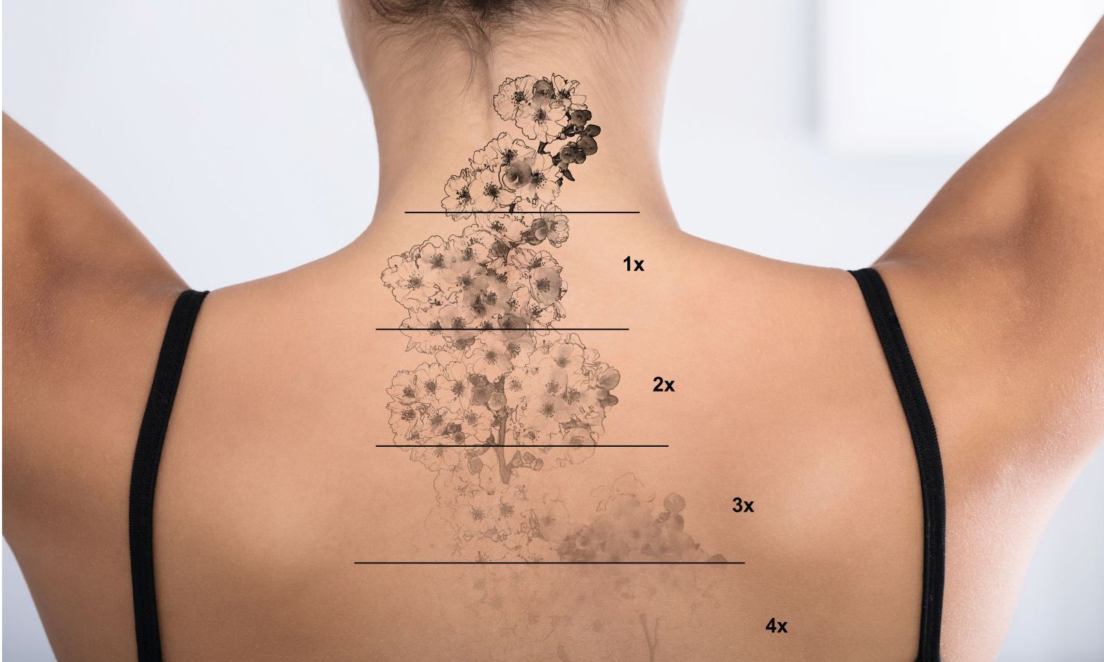 Tattoo Removal On Woman´s Back
