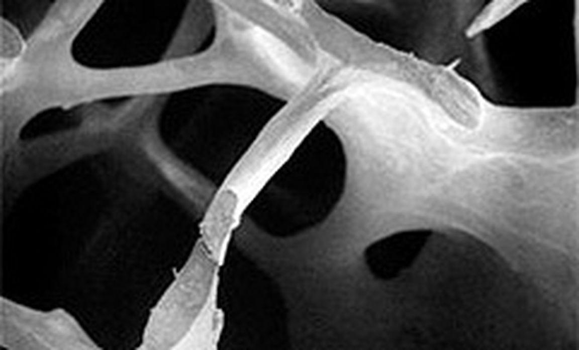 Knochenschwund: Eine Spritze gegen Osteoporose « DiePresse.com