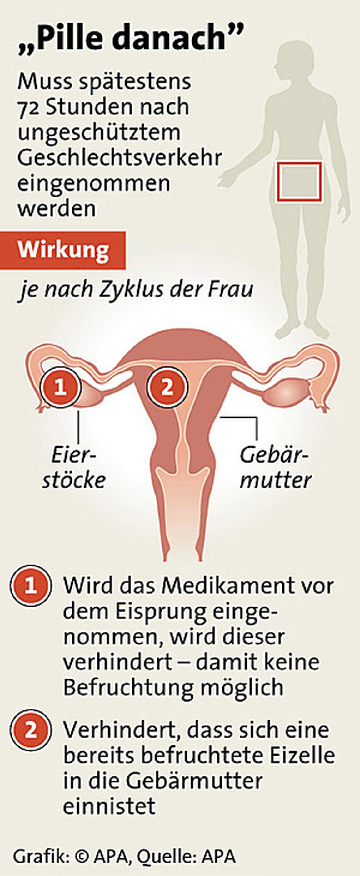 Pille Danach Schmierblutung Statt Periode