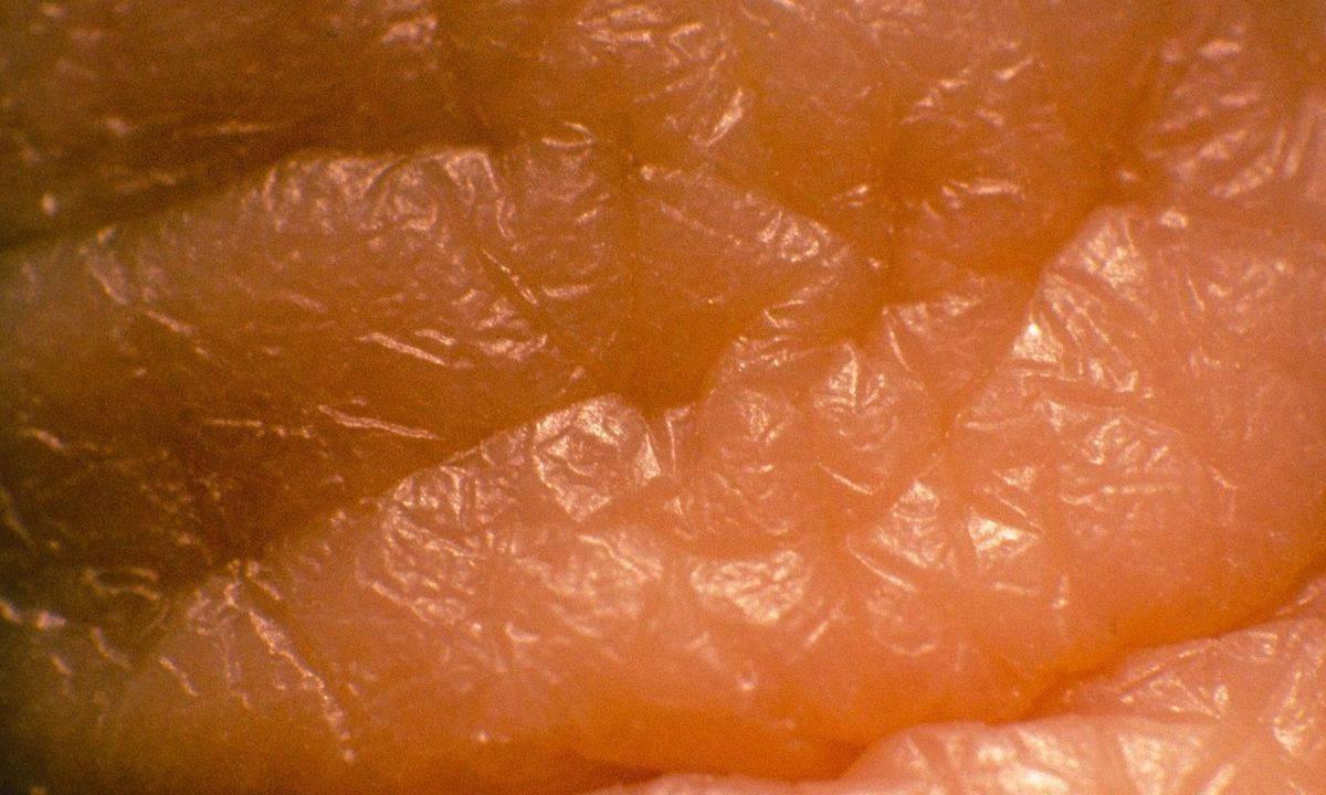 Unter der Haut: eine anatomische Neuentdeckung « DiePresse.com