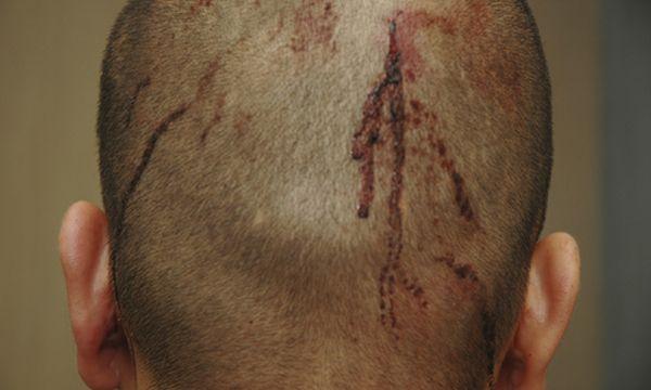 Ein Foto des Bürgerwehr-Mitglieds George Zimmermann vom Abend des Schusses. Es soll belegen, dass Zimmermann aus Notwehr gehandelt hat. / Bild: (c) AP