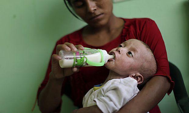 ARCHIV - Telma Najera, 25, fuettert am 10. September 2009 ihren unterernaehrten Sohn Minor Najera in