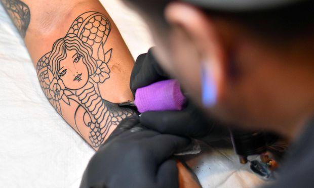 Eine Tattooentfernung geht ins Geld. Doch wer muss dafür zahlen?