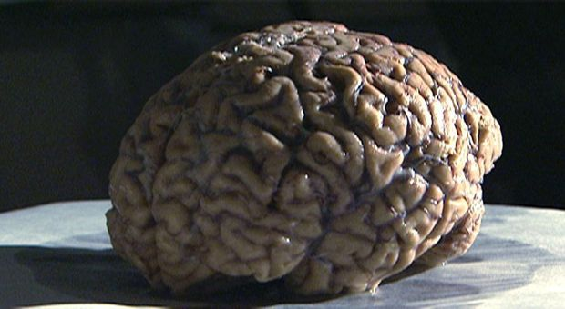 Das Hirn und Ich