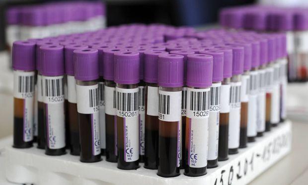 MedizinForscher züchten Blutstammzellen im Labor