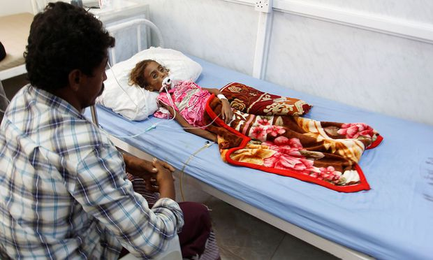 Father of malnourished girl Jamila Ali Abdu sits as she lies on a hospital bed before she died in the Red Sea port city of Hodeidah