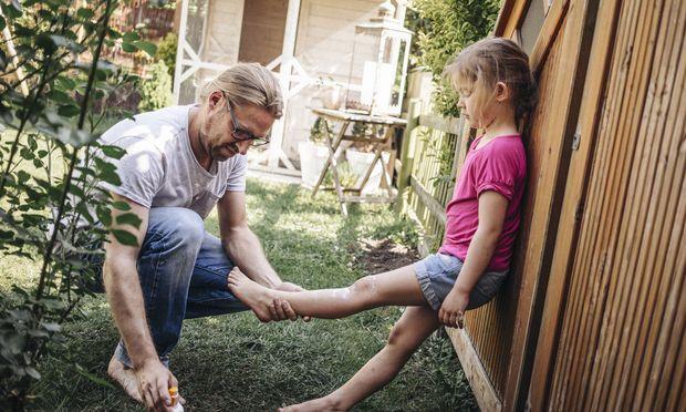 Ungeschützt droht Kinderhaut rasch ein Sonnenbrand.