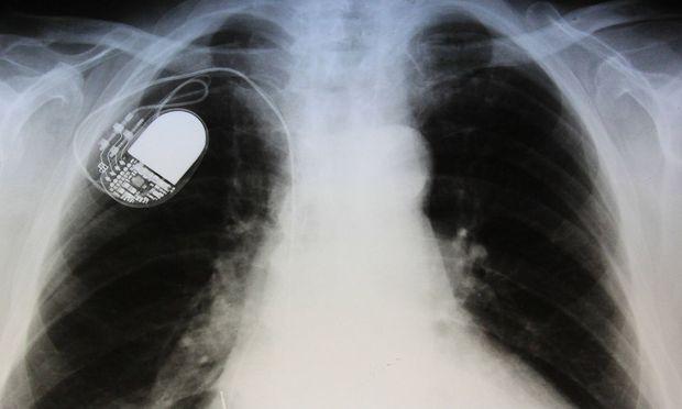 Symbolbild: Ein Herzschrittmacher auf einer Röntgenaufnahme