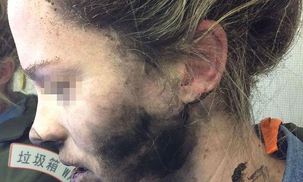 Die Frau kam mit Rauchspuren am Hals und versengten Haaren davon.