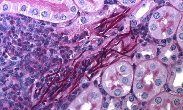 Im Mikroskop sieht man die gefährlichen Pilzhyphen wie dicke Fäden – bei einer Candida-Infektion in der Niere.