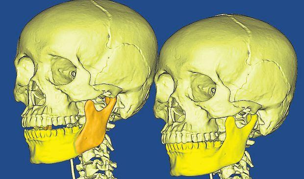 Anhand von dreidimensionalen Modellen im Computer können Größe und Form von Implantaten – im Bild von Kieferknochen – exakt angepasst werden.