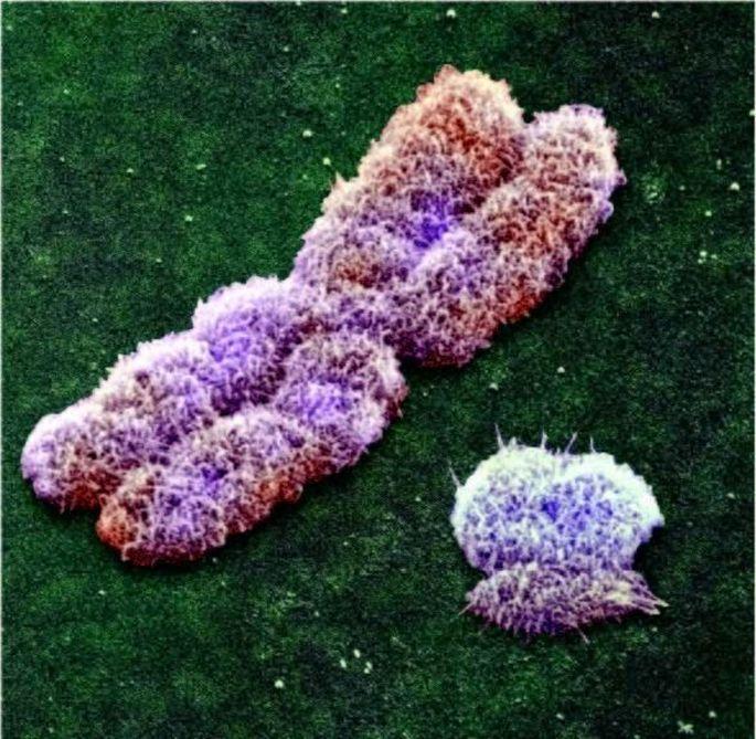 Ein ungleiches Paar: links das X-, rechts das viel kleinere Y-Chromosom eines männlichen Menschen.