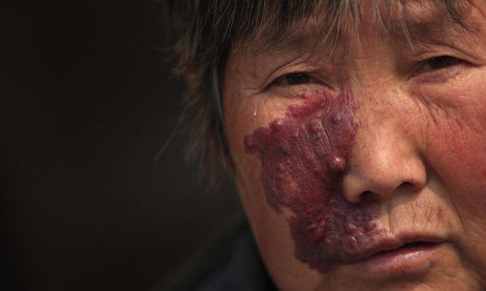 China gesteht Existenz Krebsdoerfern
