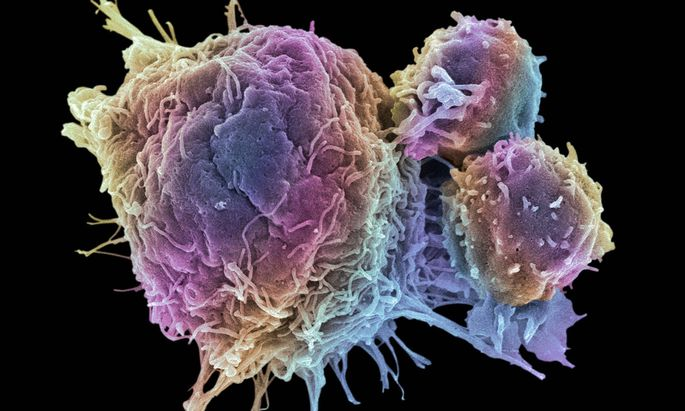 Krebs beginnt im Erbgut.