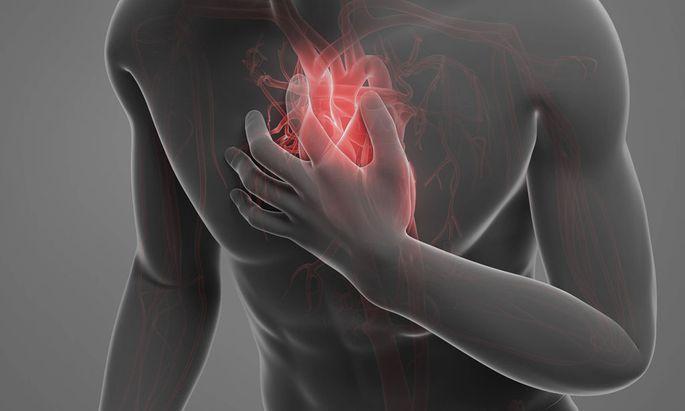 Themenbild: Herzinfarkt