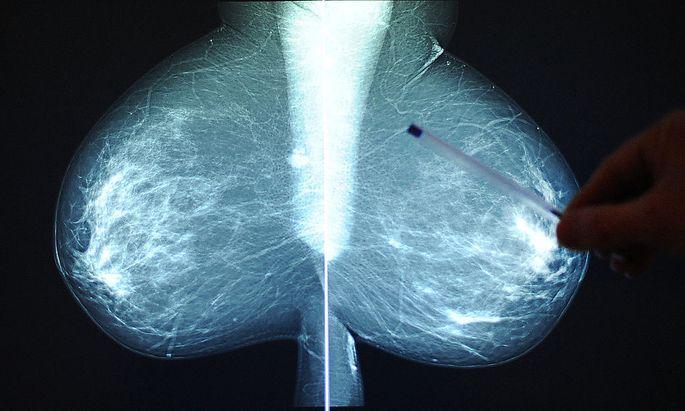 Brustkrebs ist nach Lungenkrebs die zweithäufigste Krebsart.