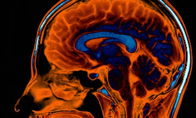 Einen Wirkstoff ins Gehirn zu bringen, und das auch noch präzise, ist nicht einfach. Aber mit Gentechnik und Ultraschall geht es.