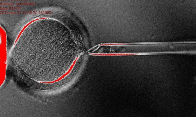 Stammzellen Naeher mein Klon