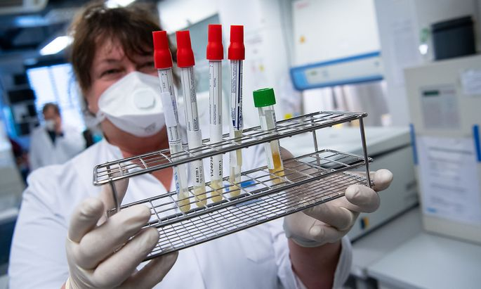 Coronavirus - Auch in den Unternehmen braucht es gute Befunde