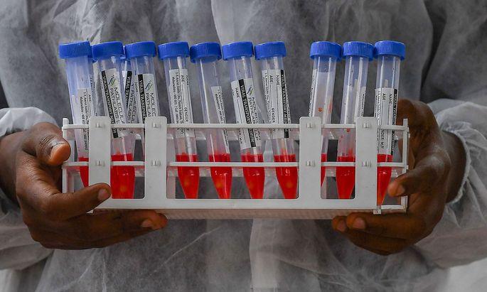 Testen, Tracen und Isolieren bleibt laut Forschern wichtig.
