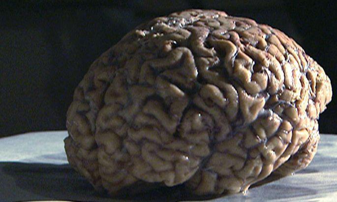 kreuz und quer ´Das Gehirn und ich´
