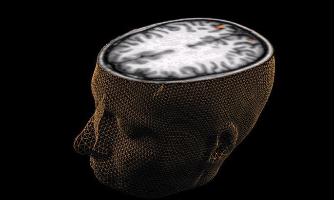 Wiener Wissenschaftler lassen Gehirntumore leuchten