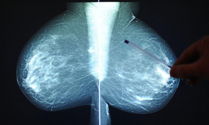 Die Mammografie wird durch den Bluttest ergänzt