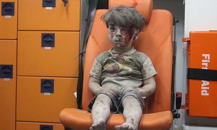 Omran Daqneesh nach dem Bombenangriff.
