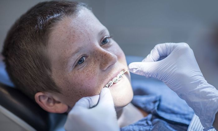 Boy with braces in dental surgery receiving dental floss treatment model released Symbolfoto propert