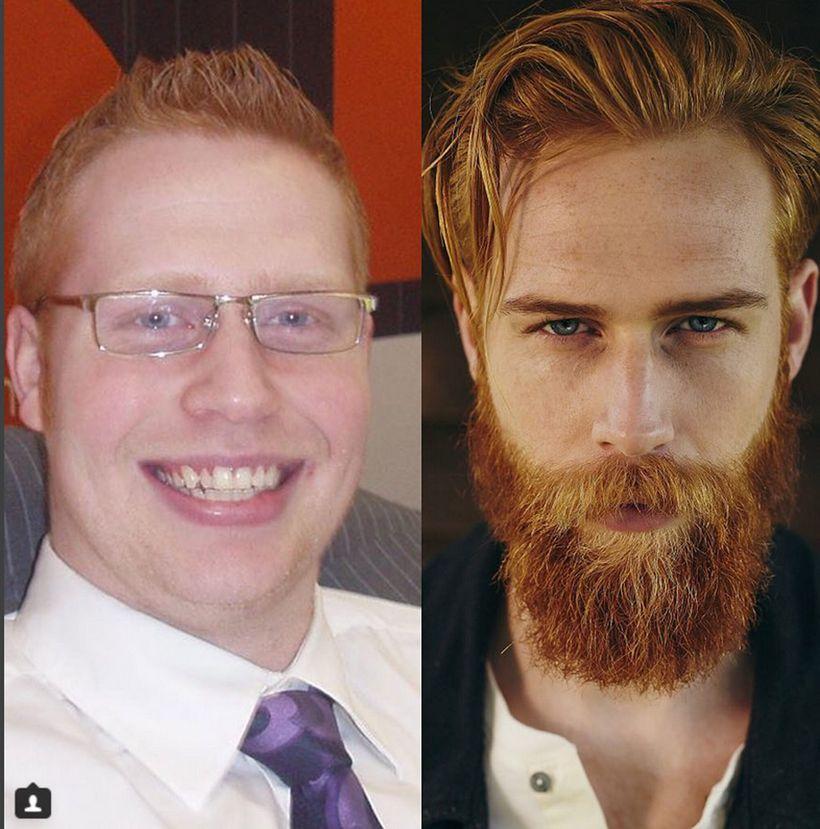Am kinn bart Bartformen &