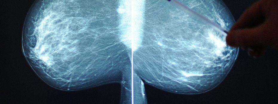 Zu sehen ist das Röntgenbild einer Mammografie.  / Bild: APA/BARBARA GINDL